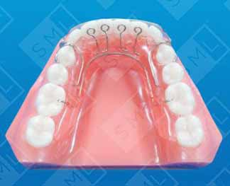 removable aligner therapy